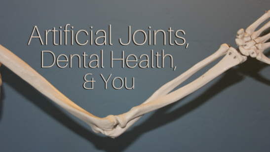 Pre-Medication for Dental Work After Joint Replacement