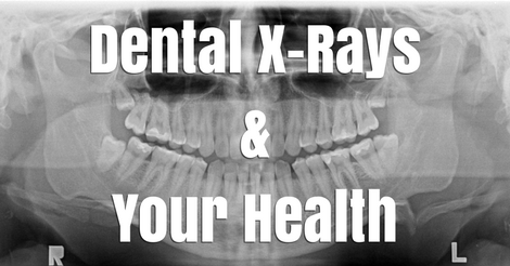 Dental X-Rays and Your Health