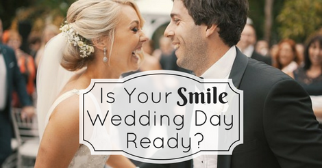 Planning Your Wedding Day Smiles